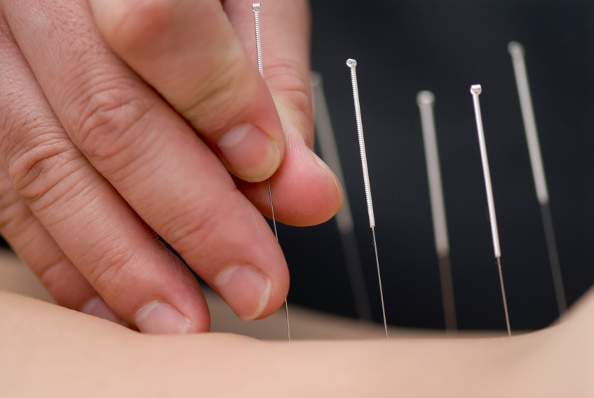 Treatment by acupuncture. The doctor uses needles for treatment of the patient.