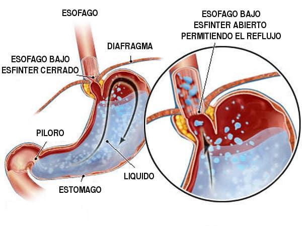 Reflujo de ácidos o pirosis ejemplo