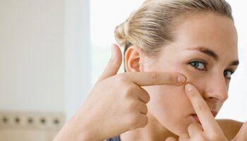 Acne y problemas de la piel