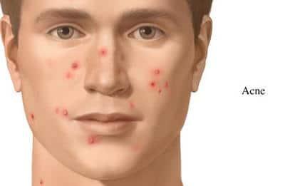 problemas de acne en el cara