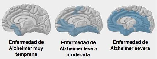 Enfermedades del cerebro, alzheimer y demencia senil