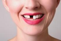 que hacer al perder diente
